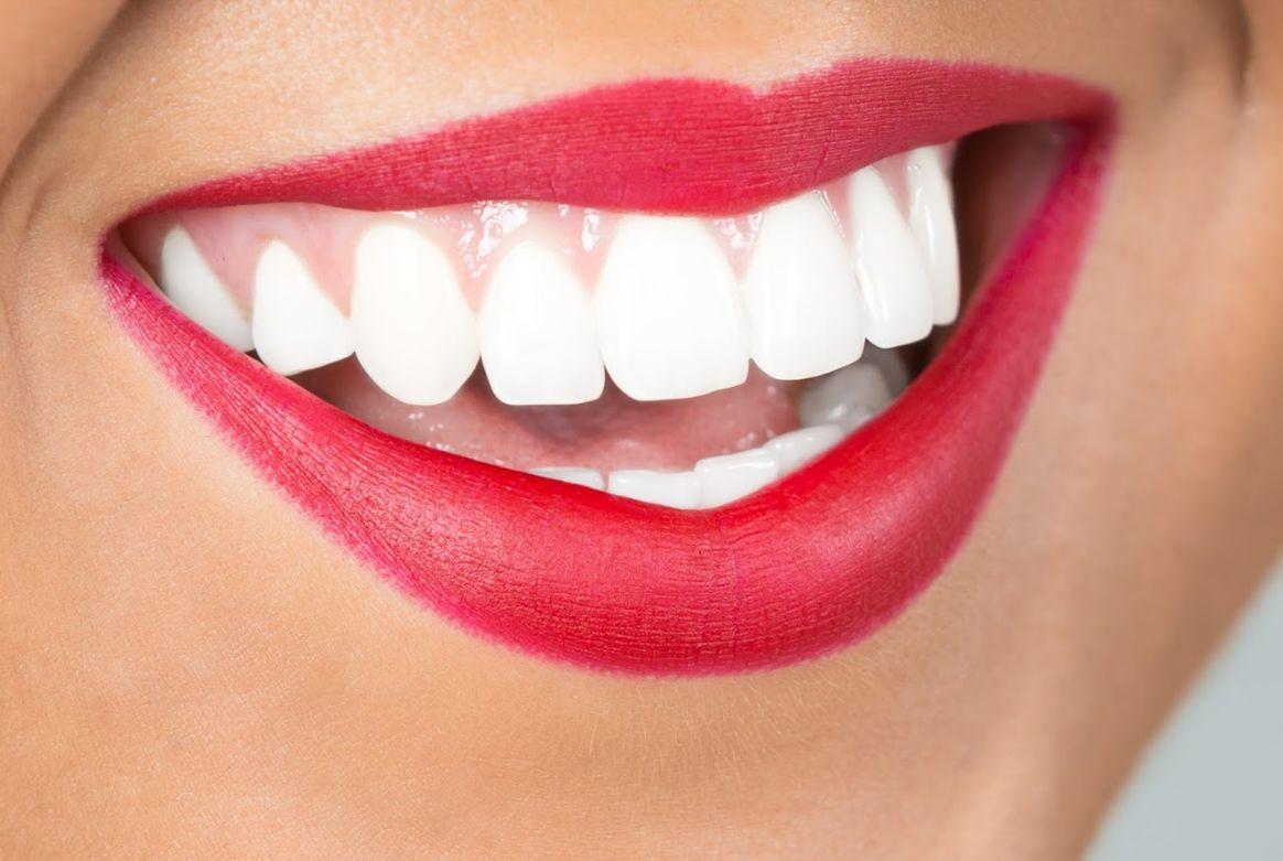 Estética dental: Tratamientos de Clínica EasyDent