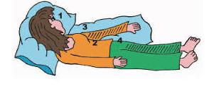 Posición en la cama del paciente hemipléjico