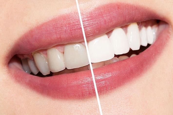 Estética y saludo dental en Dental Implantes, Toledo