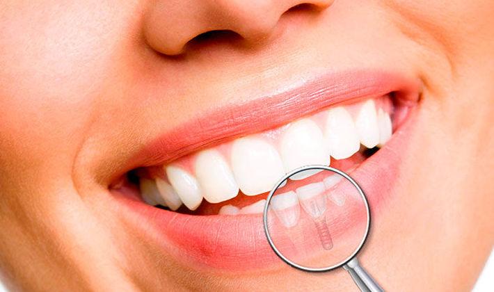 Implantes dentales en Gálvez