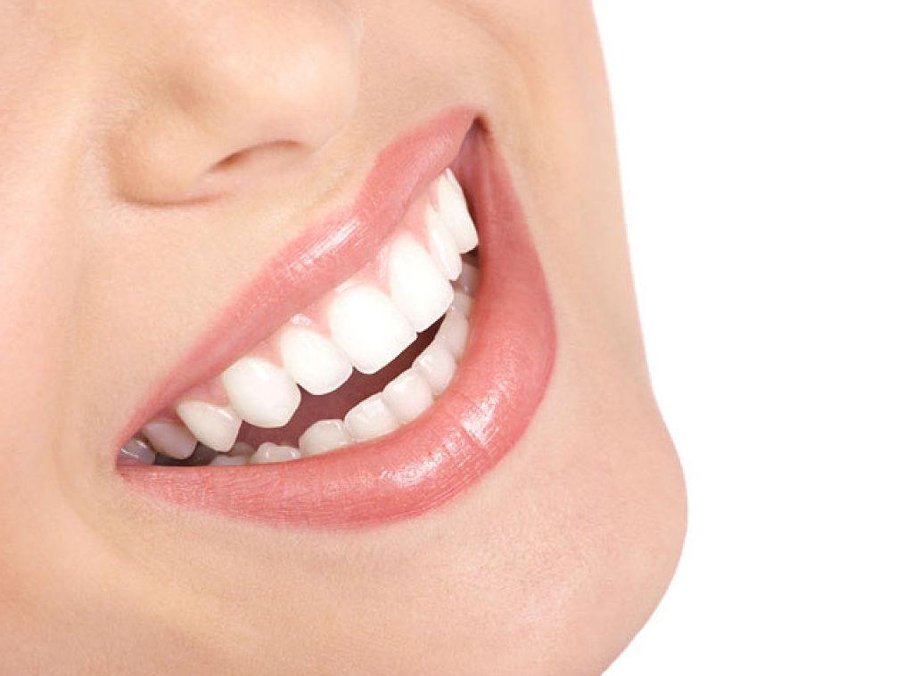 Blanqueamientos dentales: Servicios de Aramar Dental
