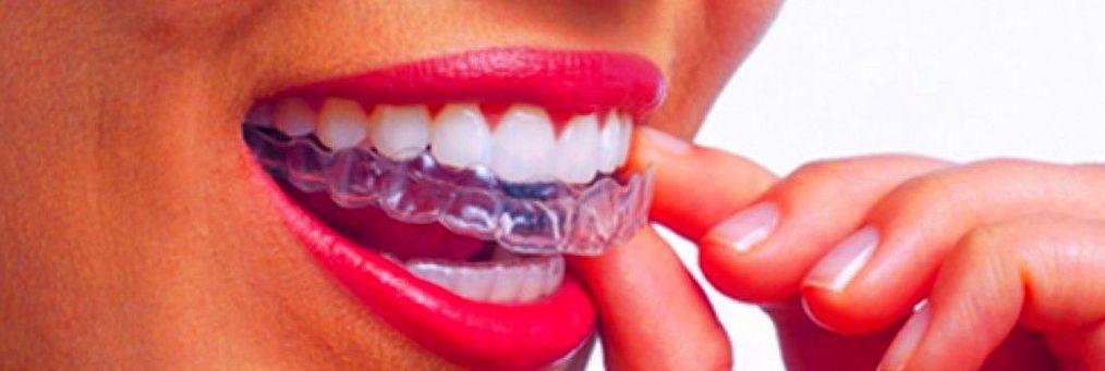 Ortodoncia invisible: Servicios de Aramar Dental
