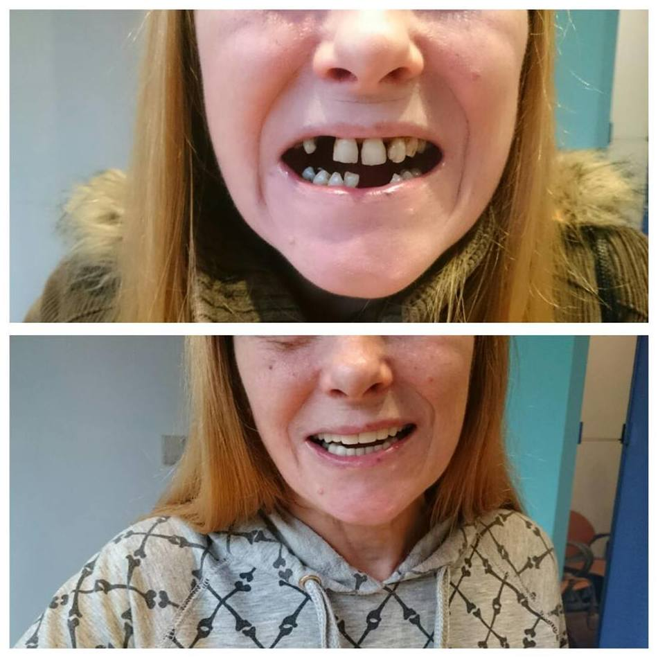 Rehabilitación oral completa mediante fundas e implantes en Santuetzi