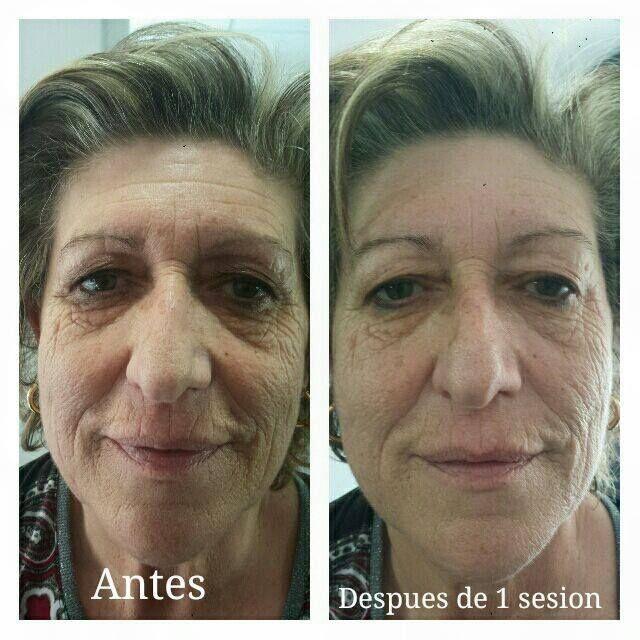 Tratamientos de radiofrecuencia facial en Peñíscola