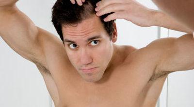 Productos para la pérdida del cabello