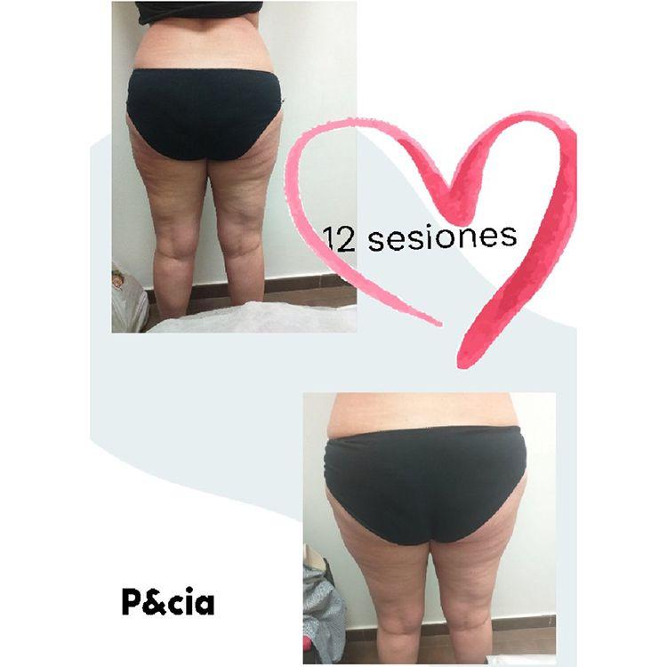 Tratamientos corporales Gijón