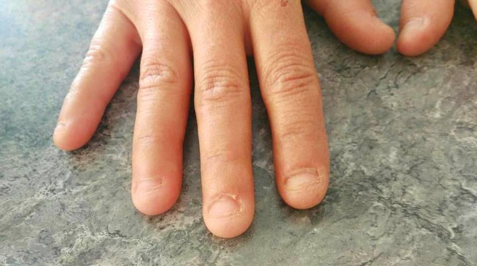 reconstruccion de uñas mordidas  . antes
