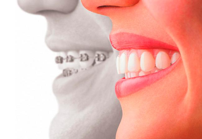 Ortodoncias invisibles.jpg