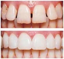 Estética dental: Servicios de BONODEN
