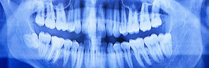 Radiología: Servicios de BONODEN