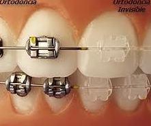 ¿Ortodoncia fija o removible?