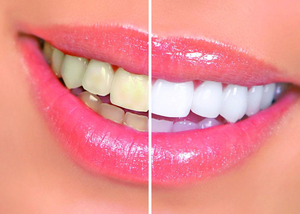 Foto 11 de Dentistas en Barcelona | Dental Icaria, S.L.