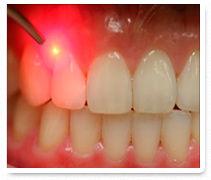 Laser diodo para tratar problemas de encias