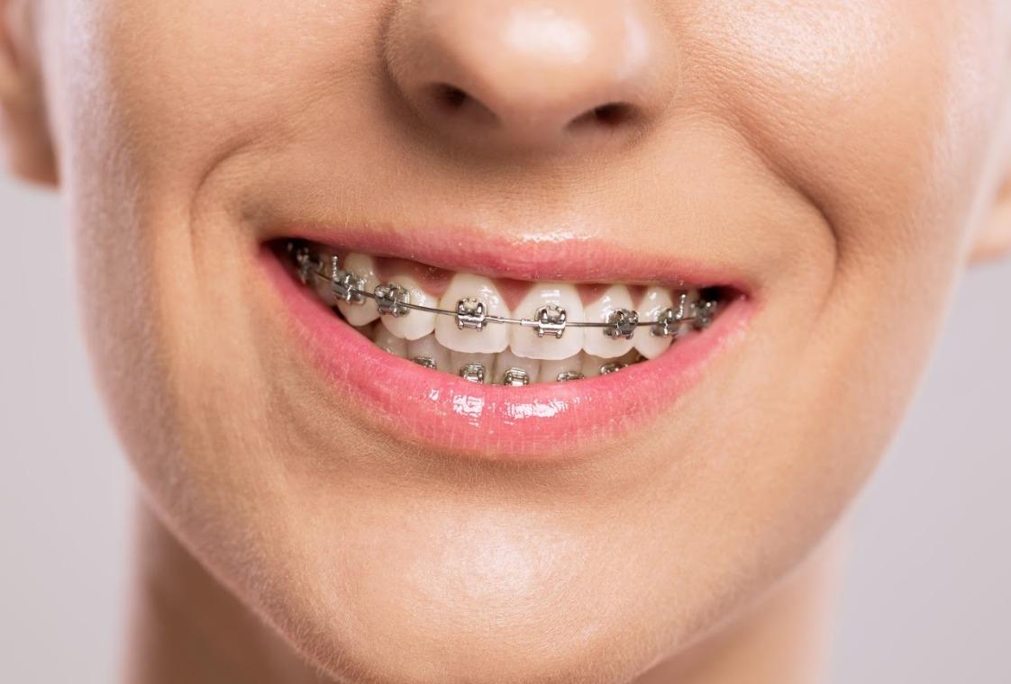 Ortodoncia convencional metálica