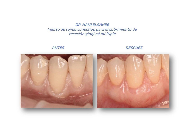 Foto 7 de clínica dental en L'Hospitalet de Llobregat | CDA Clínica Dental