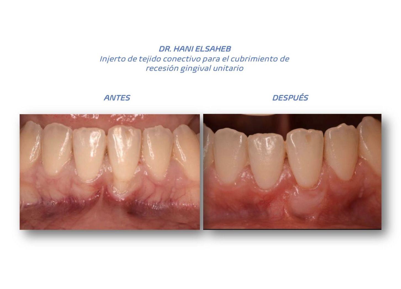 Foto 10 de clínica dental en L'Hospitalet de Llobregat   CDA Clínica Dental