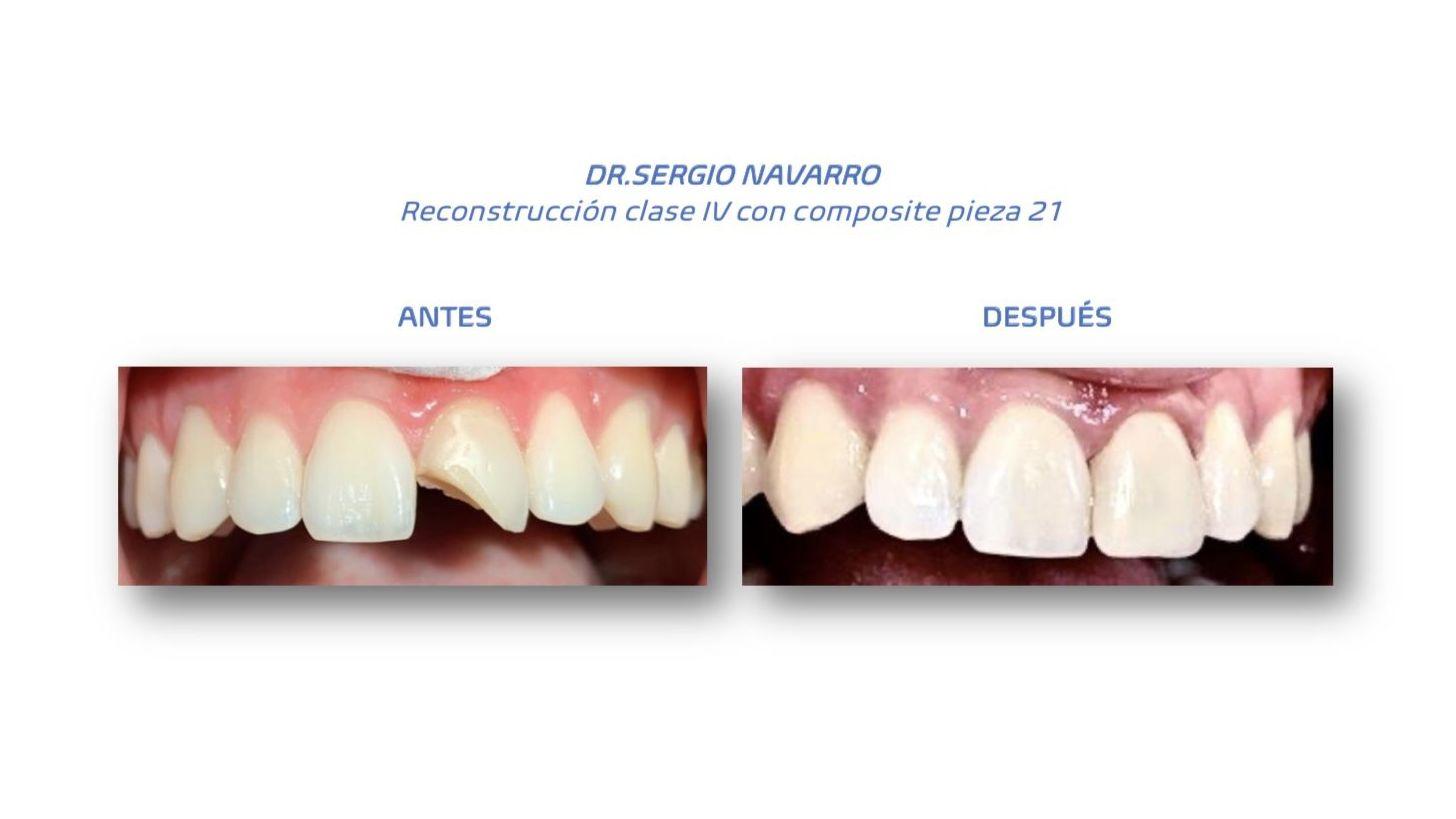 Foto 9 de clínica dental en L'Hospitalet de Llobregat | CDA Clínica Dental