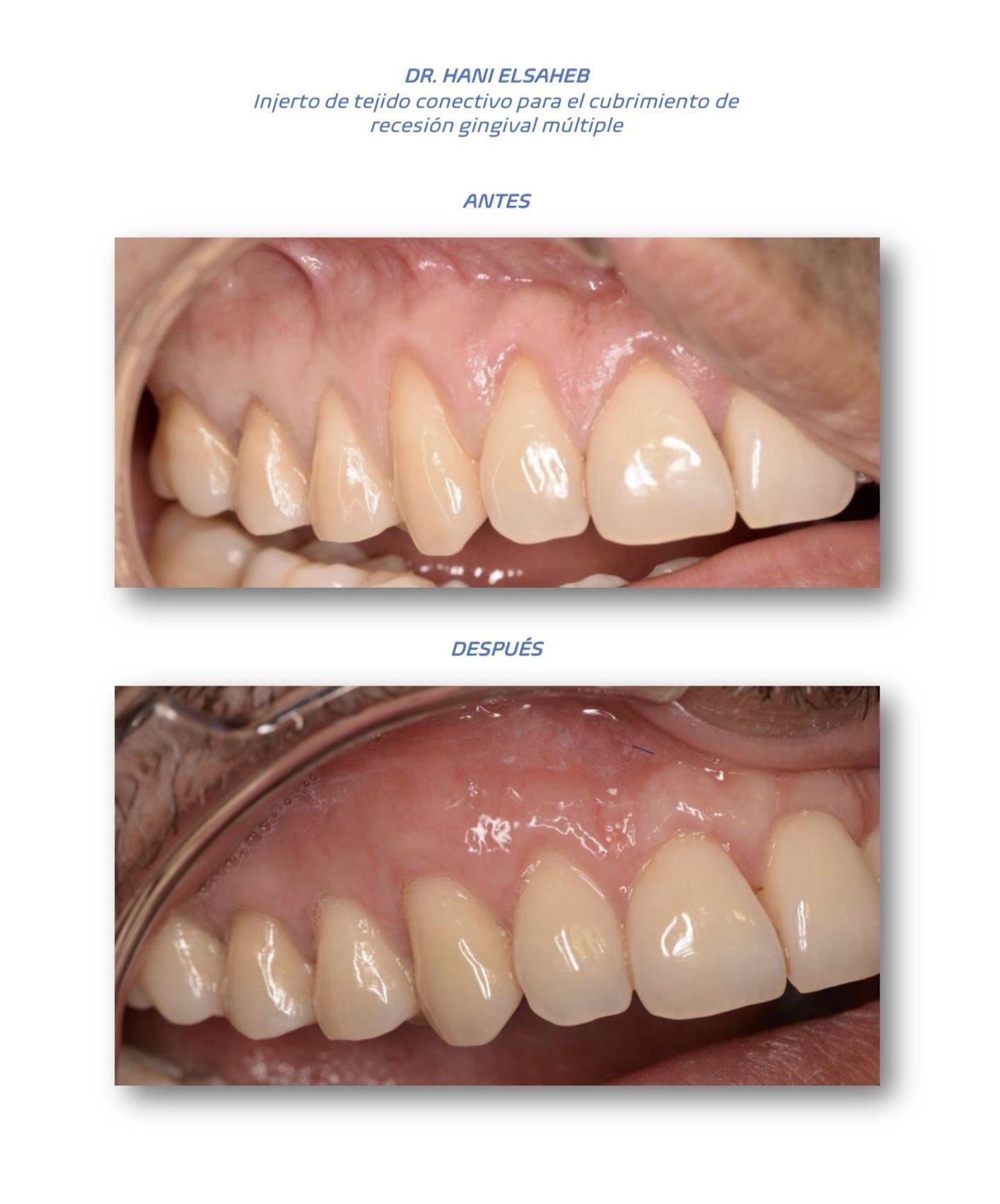 Foto 8 de clínica dental en L'Hospitalet de Llobregat | CDA Clínica Dental