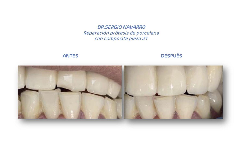Foto 11 de clínica dental en L'Hospitalet de Llobregat | CDA Clínica Dental