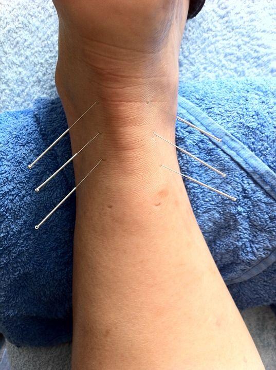 Punción seca: Tratamientos de Kinesics Fisioterapia