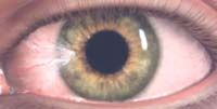 Opticos