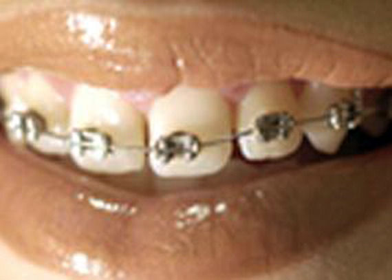Foto 3 de Clínicas dentales en Ermua   Clínica Dental Integral Ermua