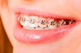 Foto 12 de Dentistas en A Coruña | Clínica Dental Dr. Delgado y Dra. Díaz