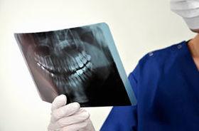 Cirugía oral: Servicios que ofrecemos de Clínica Dental Dr. Delgado y Dra. Díaz