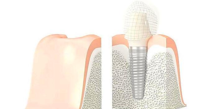 Implantología dental en A Coruña