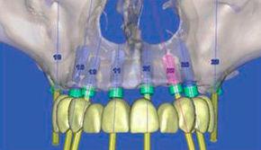 Implantes dentales: Servicios que ofrecemos de Clínica Dental Dr. Delgado y Dra. Díaz