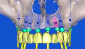 Foto 11 de Dentistas en A Coruña | Clínica Dental Dr. Delgado y Dra. Díaz