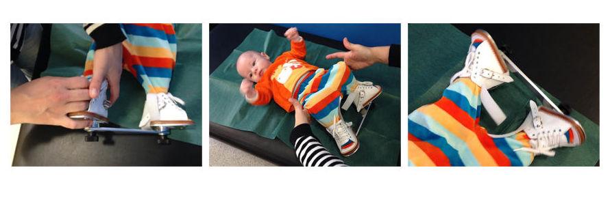 traumatologia infantil arcc