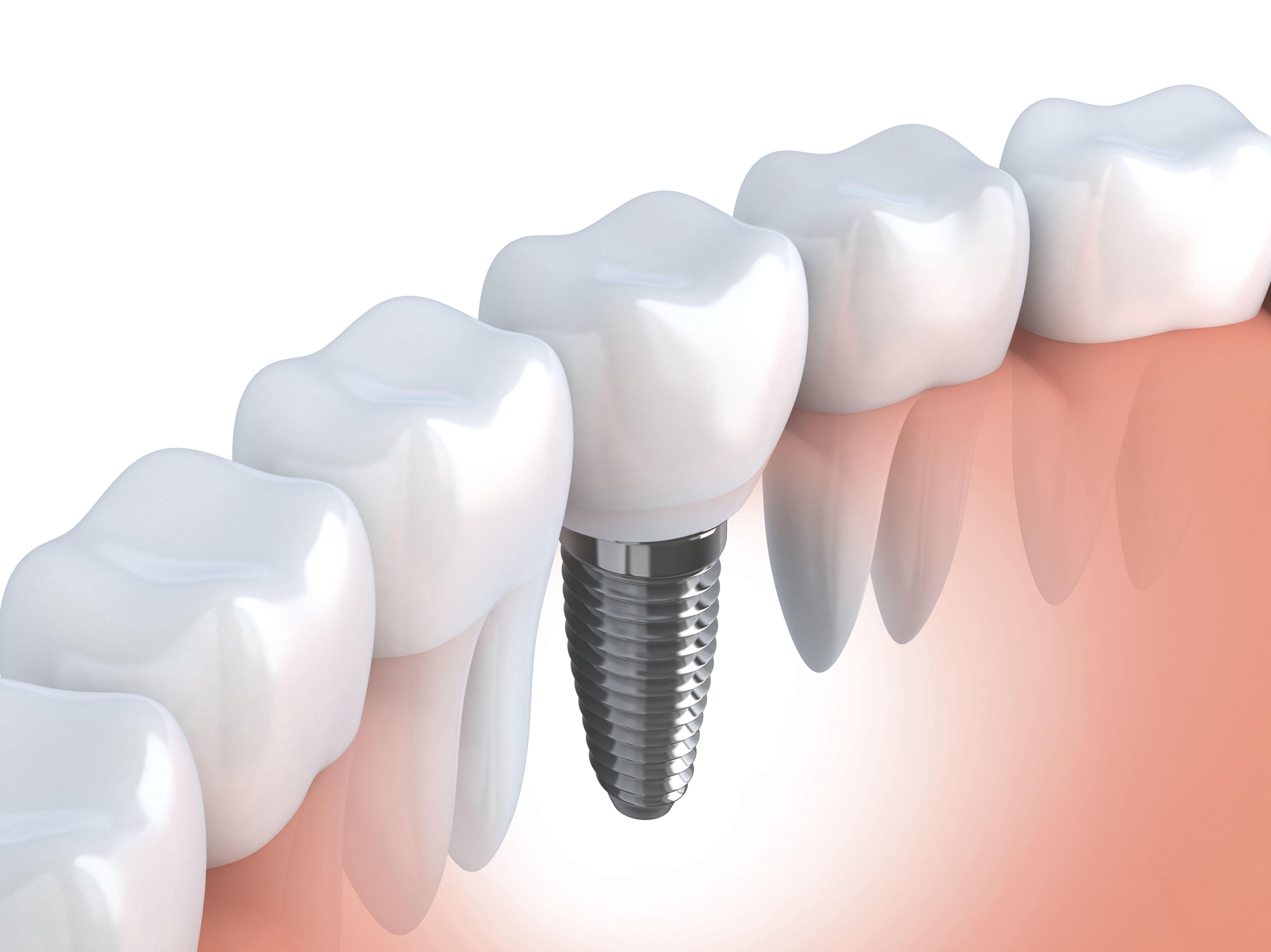 Implantología dental en la Clínica Valloc en Palau-solità i Plegamans
