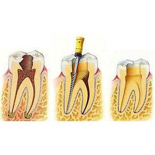 Endodoncia: Tratamientos de Clident