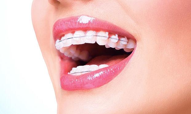 Ortodoncia: Tratamientos de Clínica Dental Olivieri
