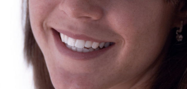 Odontología Preventiva: Tratamientos de Clínica Dental Olivieri