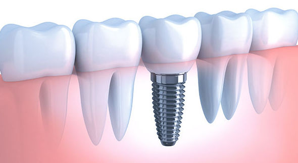 Implantes dentales en el Eixample, Barcelona