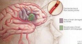 Terapia del lenguaje, una opción para los afectados por un accidente cerebrovascular