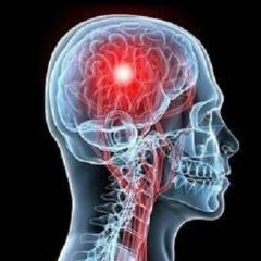Accidente cerebrovascular: Una mirada fonoaudiológica