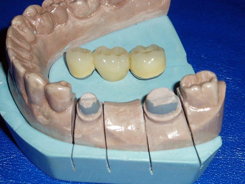 Prótesis dental en Llerena, Badajoz