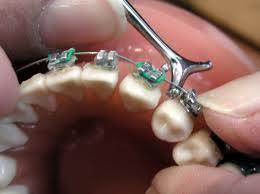Ortodoncia: Tratamientos de Clínica Dental Doctor Cortés FC