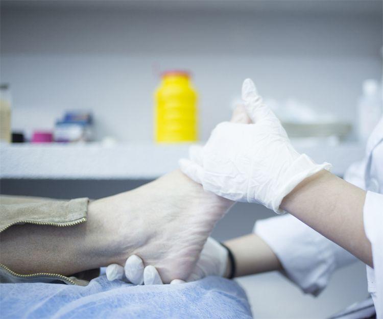 Tratamientos para las deformaciones del pie en Vitoria