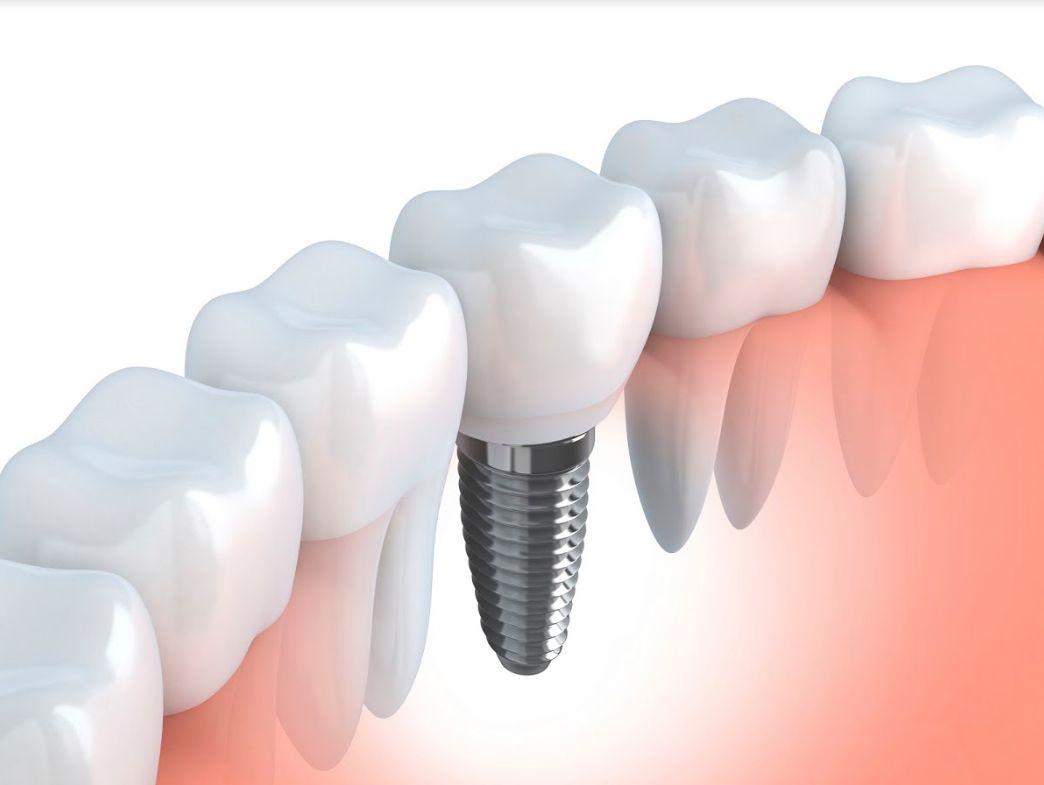 Prótesis dental Mollet del Vallès