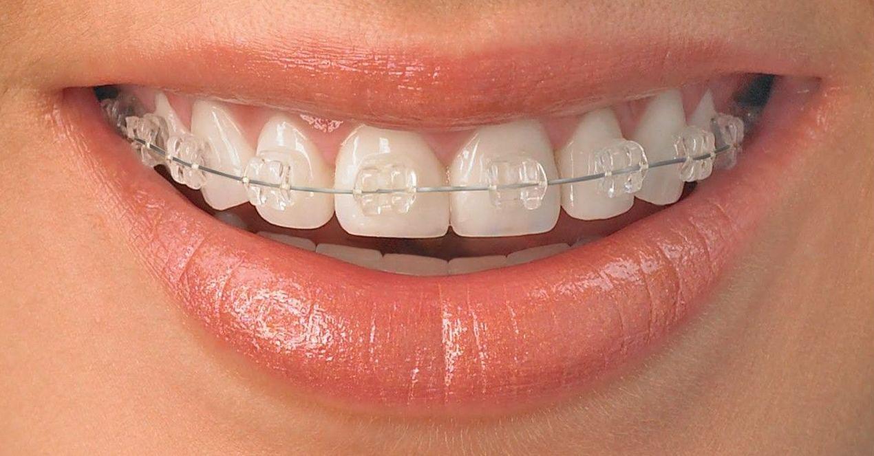Ortodoncia: Tratamientos de Clínica Dental Fortaña-Giménez