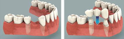 Protesis fijas: Tratamientos de Clínica Dental Fortaña-Giménez