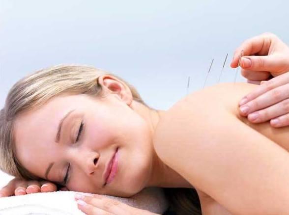 Tratamientos de acupuntura en Mallorca