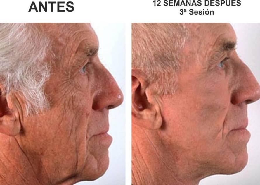 """Lifting facial y cuello sin cirugía con técnica Hifu 3D Sesión 250€ Bono 3 sesiones 600€ """" se realiza una sesión cada 12 semanas"""" 657549657"""