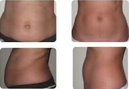 """ANTES Y DESPUÉS DE UNA SESIÓN HIFU 3D """" reafirma y elimina la grasa"""" Resultado después de 4 semanas. Se realizó Hifu en abdomen y flancos 400€"""