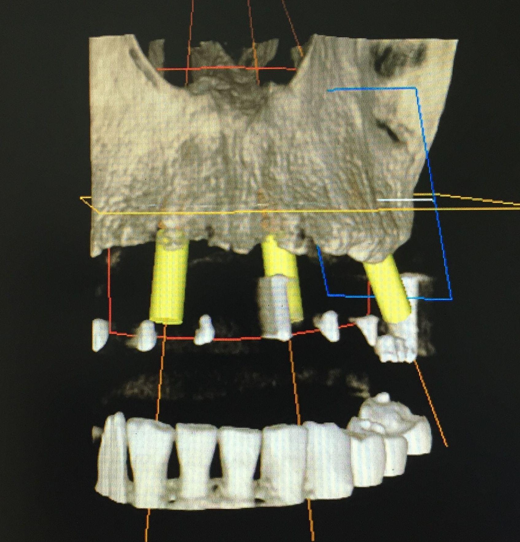 Implantología: Especialidades de Clínica Dental Dr. Juan Luis Sánchez
