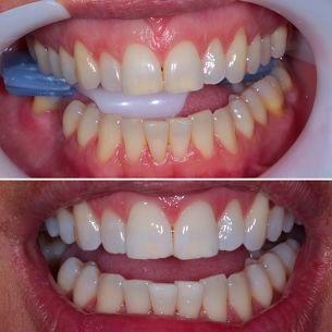 Blanqueamiento dental: Especialidades de Clínica Dental Dr. Juan Luis Sánchez